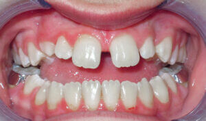 Before: Patient with an anterior, posterior openbite