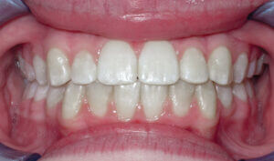 After: Patient with crowding and an overbite