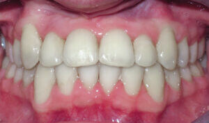 After: Patient with a crossbite, underbite, and crowding