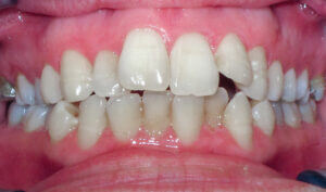 Before: Patient with a crossbite, openbite and crowding
