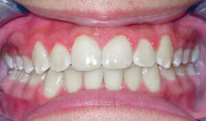 After: Patient with crowding and protrusion