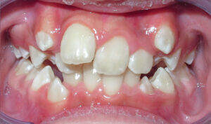 Before: Patient with crowding and protrusion