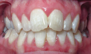 Before: Patient with a crossbite and crowding