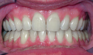 After: Patient with an overbite