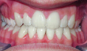 After: Patient with an openbite