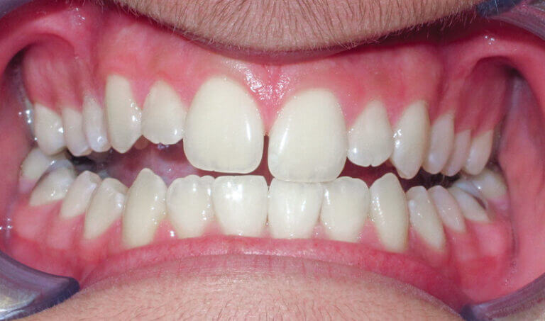 After Patient with an openbite