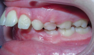Before: Patient with an overbite and protrusion