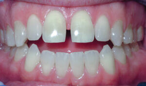 Before: Patient with spacing and an anterior openbite
