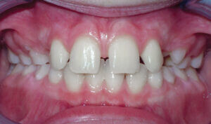 Before: Patient with spacing and an overbite