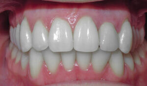 After: Patient with crowding and a crossbite