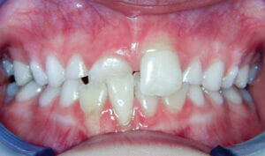 Before: Patient with crowding and an anterior crossbite