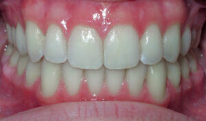 After: Patient with an anterior openbite