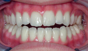 Before: Patient with an anterior openbite