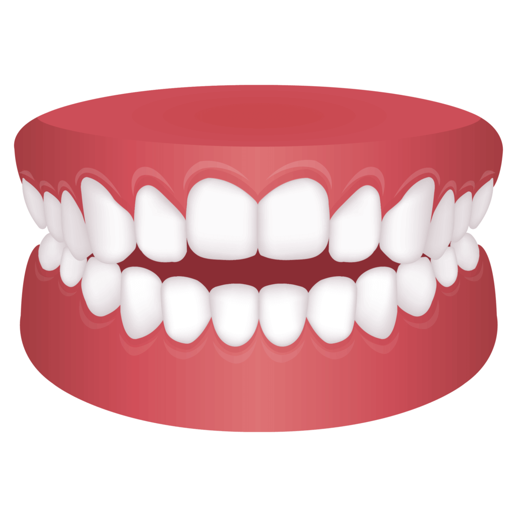Mouth with openbite