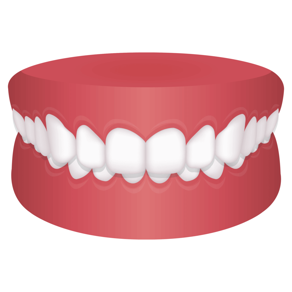 Mouth with overbite
